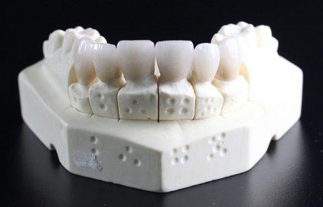 מהן השיטות השונות לשיקום הפה?